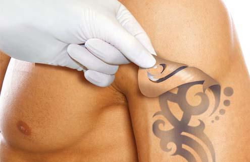 """Лазерное удаление татуировок и перманентного макияжа в """"Linline"""" со скидкой 50% + бесплатная консультация врача"""