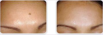Удаление папиллом, родинок, бородавок от 1,20 руб. + первичный прием врача косметолога