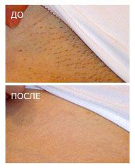 Новинка! Epilfree - удаление волос навсегда от 15 руб. Даже для светлых, седых и рыжих волос!