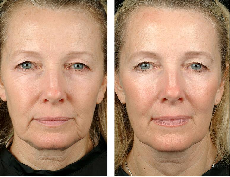 Фотолечение и фотоомоложение лица, декольте, шеи, рук от 15,80 руб.