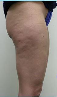 """""""Антицеллюлитный экспресс"""" и 6 голливудских методик похудения со скидкой до 85%!"""