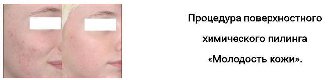 Чистка лица, пилинги, лифтинг-омоложение, мезотерапия от 15 руб.