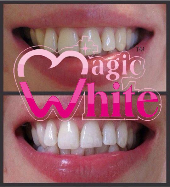"""Косметическое отбеливание """"Magic White"""" (Бельгия) и """"Brilliant Smile"""" (США) от 40 руб. 100% гарантия результата!"""