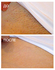 Удаление волос техникой Epilfree от 15 руб.