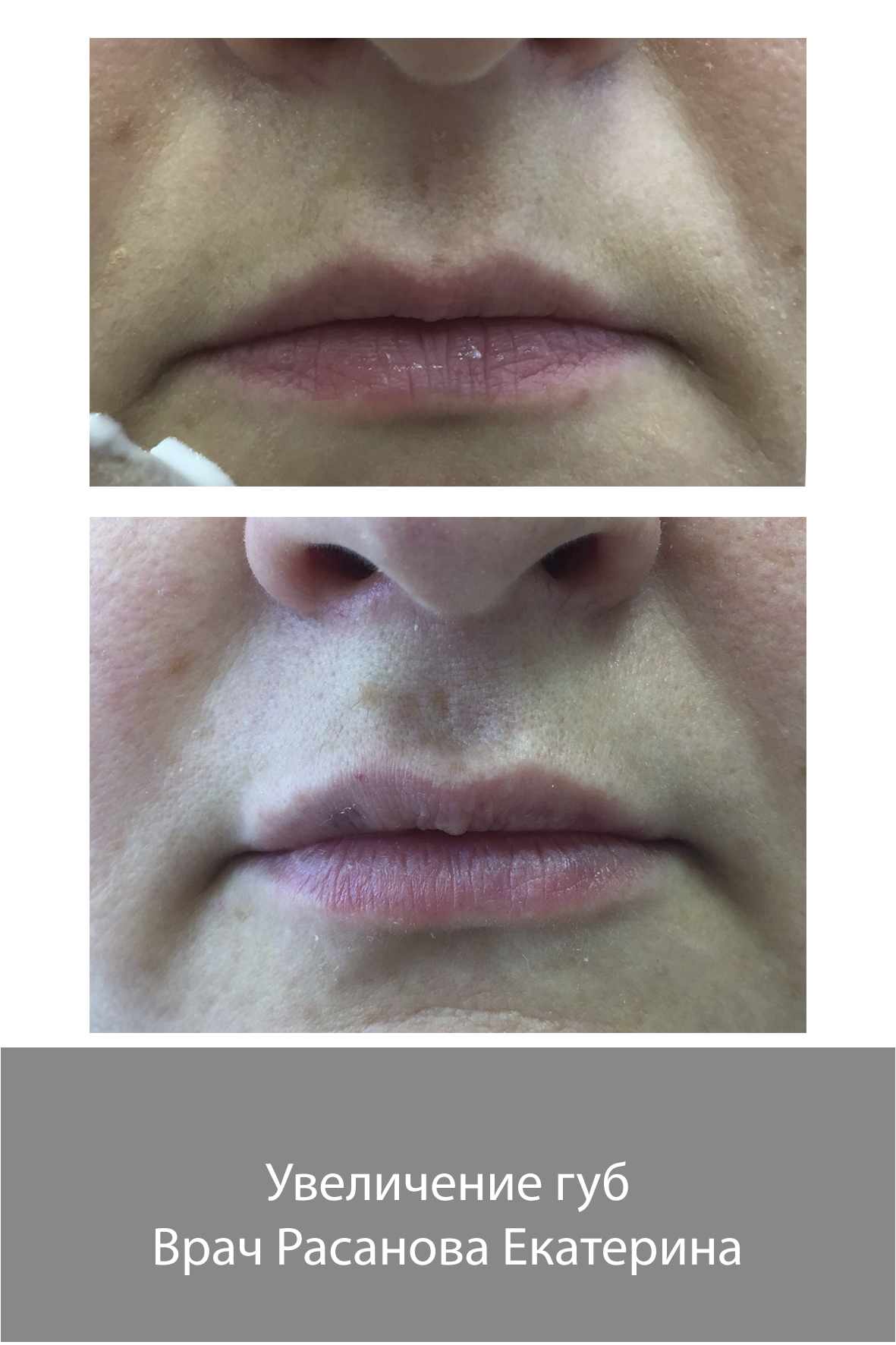 Увеличение губ, разглаживание морщин, мезотерапия, коррекция овала лица со скидкой до 30% + консультация врача бесплатно
