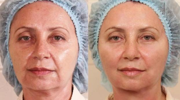 Безинъекционная мезотерапия лица видео