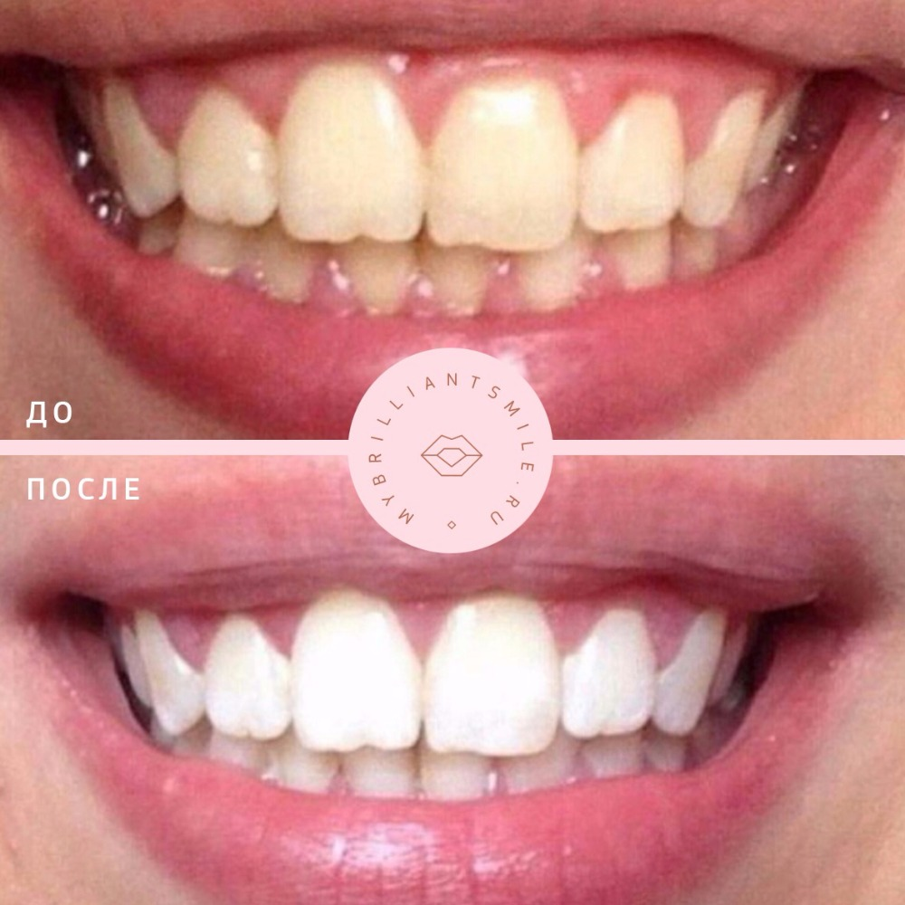 косметическое экспресс отбеливание зубов