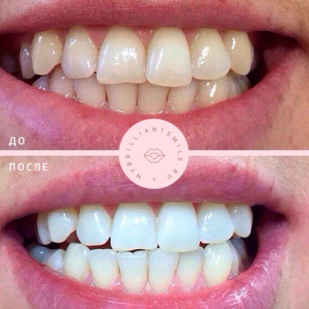 """Косметическое отбеливание зубов Brilliant Smile"""" от 40 руб. + третья процедура бесплатно!"""