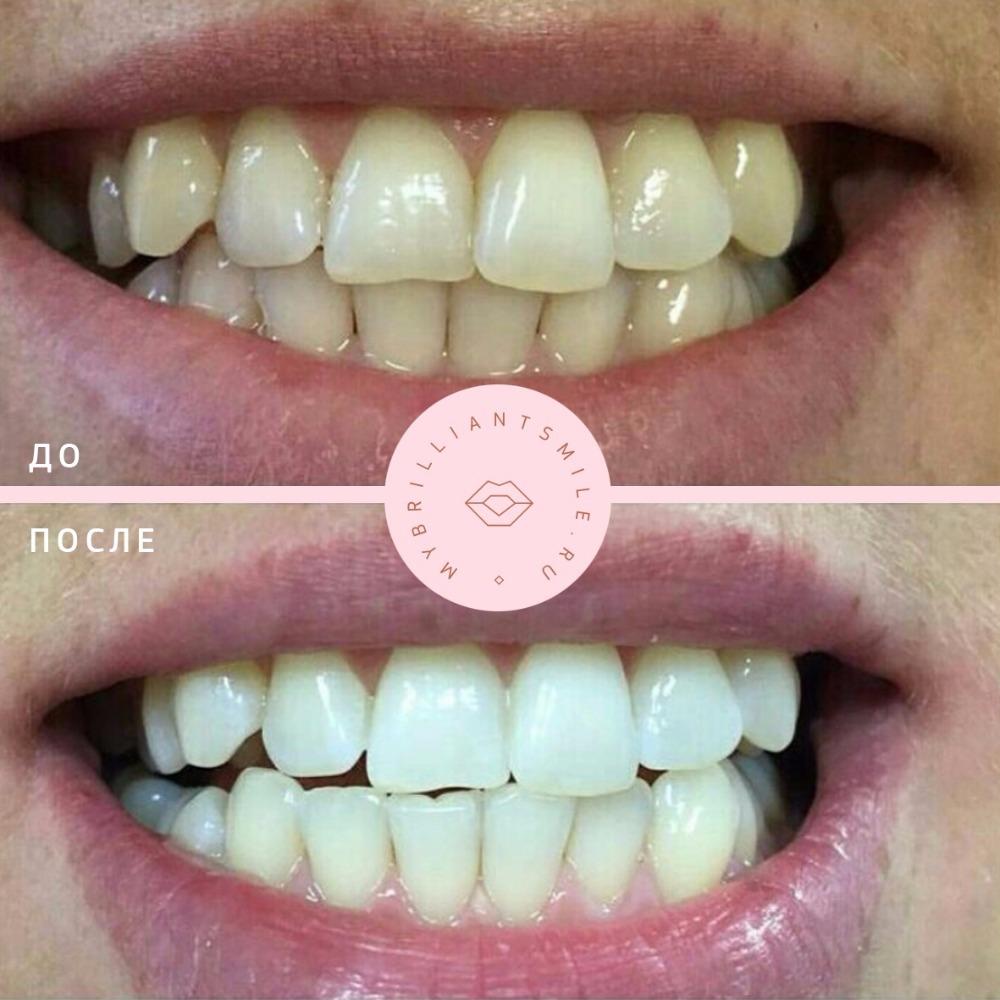 можно ли отбеливание зубы при беременности