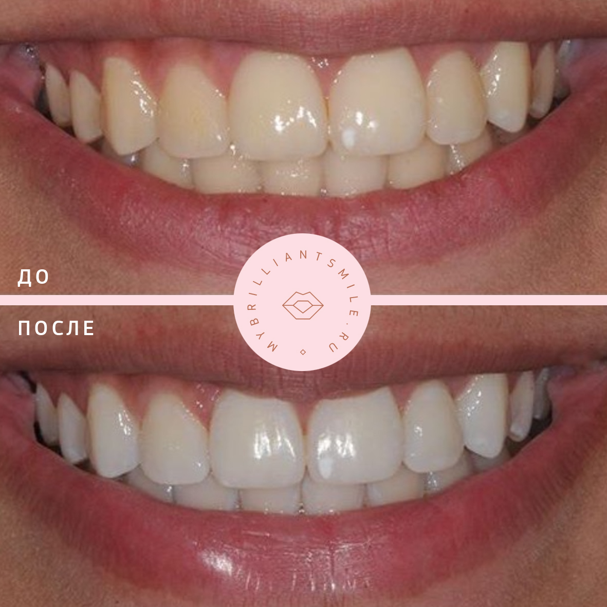 косметическое отбеливание зубов white smile
