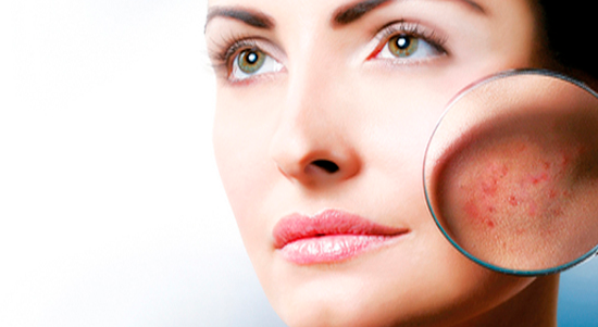 Лазерное лечение выпадения волос, удаление растяжек и постакне от 27 руб.