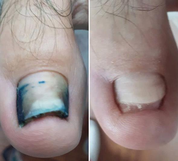 Подологический педикюр (удаление трещин, вросших ногтей, стержневых мозолей, гиперкератоза, восстановление пластины) за 45 руб.