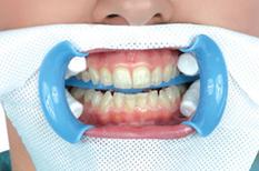 """Бесплатная консультация стоматолога (0 руб), отбеливание зубов, профгигиена от 50 руб. в центре """"Мед Авеню"""""""