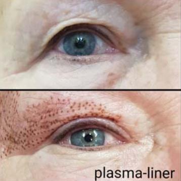 """Омоложение""""Plasma Liner"""": блефаропластика, устранение """"гусиных лапок"""" со скидкой 50%"""