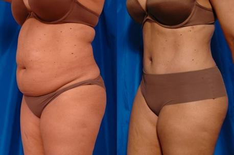 Хит сезона: программа быстрого похудения, антицеллюлитный массаж от 8 руб. Обертывание