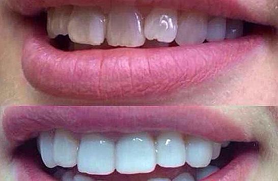 """Бесплатная консультация стоматолога (0 руб), лечение зубов, комплексы от 75 руб. в стоматологии """"Элит-Дантист"""""""