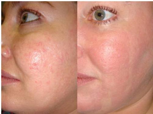 Улиткотерапия- омоложение, борьба со шрамами, угрями, акнэ от 24,50 руб.