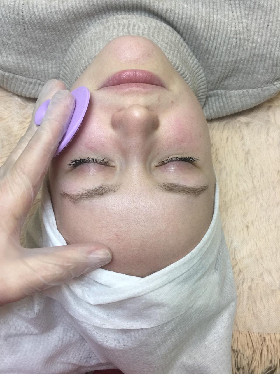 Атравматическая/комбинированная чистка лица, пилинги, уходы, массаж лица и зоны декольте от 20 руб.
