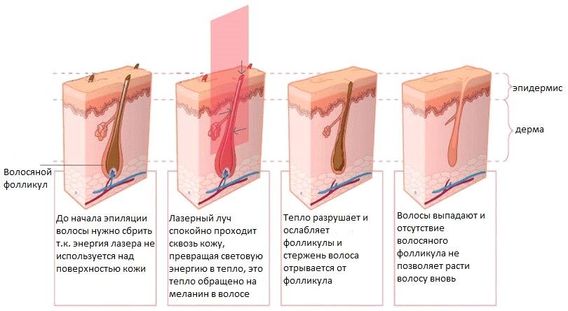 Подмышки и носогубный треугольник бесплатно. Аппаратное удаление волос от 2 руб. на системе  IPLASER в парикмахерской