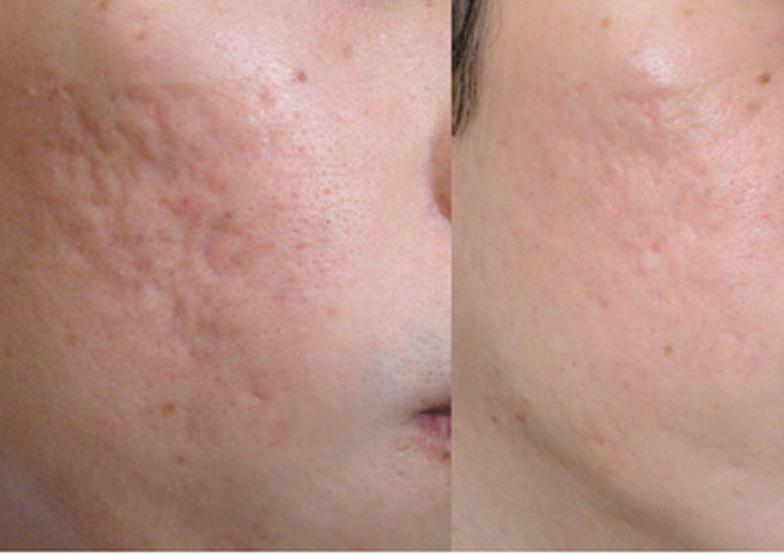 Массаж лица, пилинги, чистки, карбокситерапия, уходы за лицом от 10 руб. у косметолога Елены Приймы в