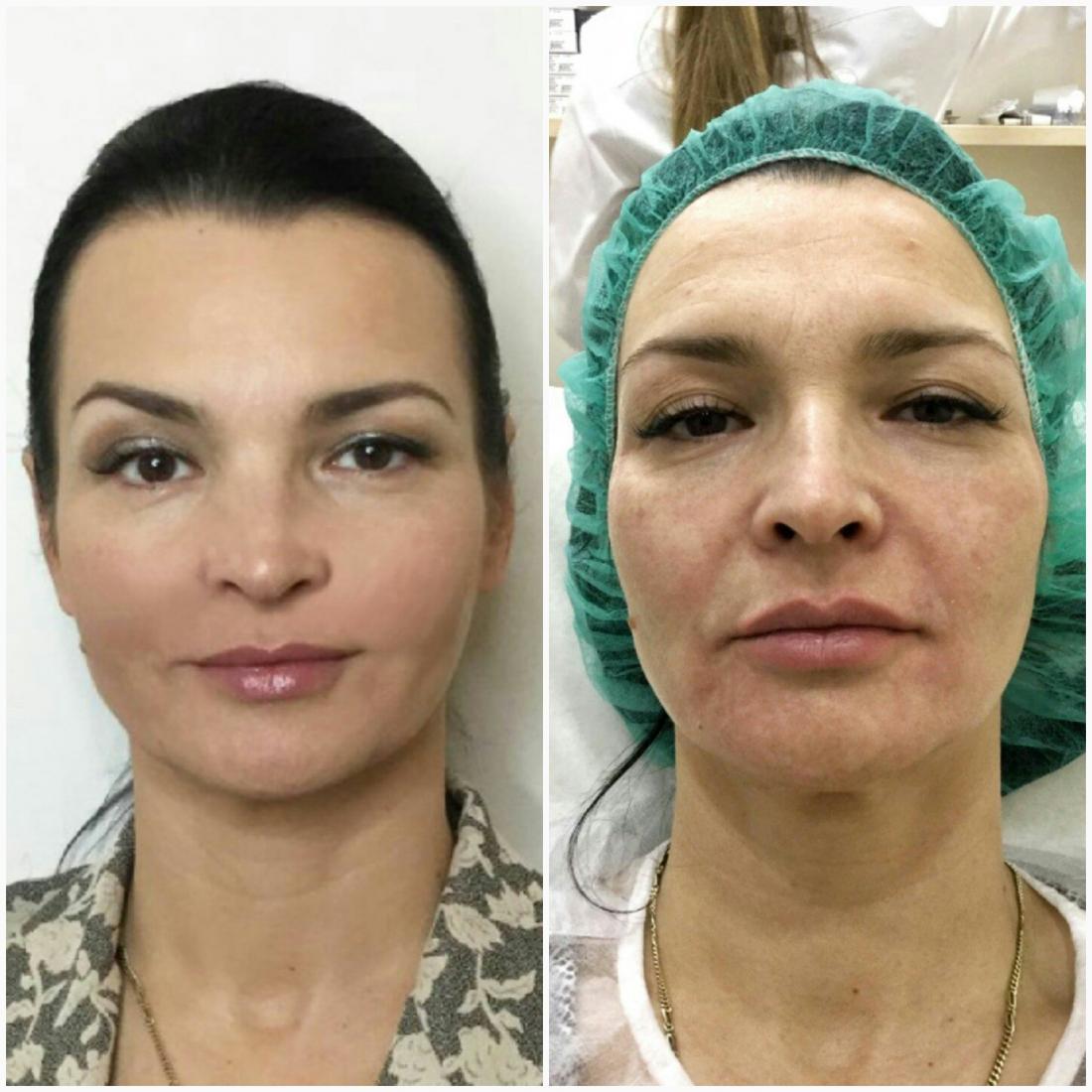 Контурная пластика, гладкие нити от 25,50 руб, консультация врача-косметолога за 6,50 руб.