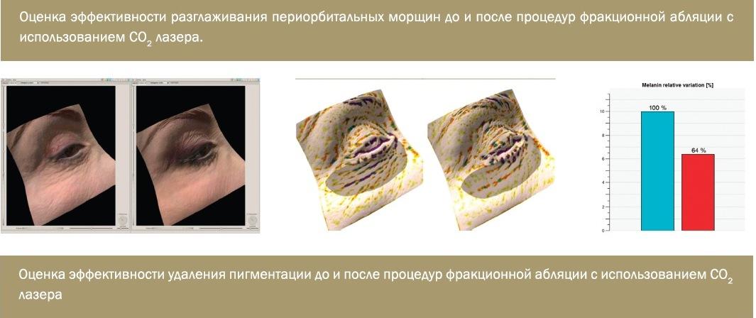 Клеточная 3D диагностика состояния кожи + консультация косметолога за 1,49 руб.