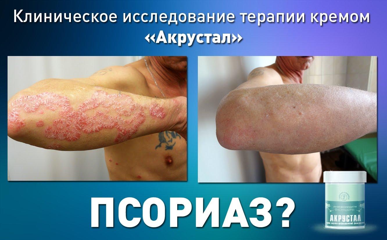 """Фитокрем и мыло """"Акрустал"""" при псориазе, нейродермите, дерматите, экземе от 8 руб."""